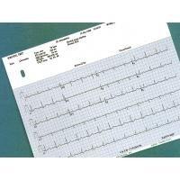 MAC Premium burdick-equivalent EKG Paper #7868 (10 Pads/Case) by Burdick