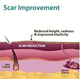 Xeragel 100% Silicone Scar Treatment Ointment