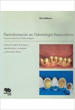 Electroformación en Odontología Restauradora: Nuevas Facetas de la Prótesis Biológica (Spanish Edition) (Spanish) 1st Edition