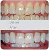 Teeth Whitening V-White 360° Ultrasonic Electric