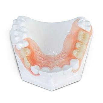 Dental Demo Flexible Partial Denture Model: Amazon com