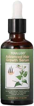 Hair Growth Serum, Hair Loss Treatments, Hair Serum, Hair Growth Oil for Thicker Longer Fuller Healthier Hair, Help Hair Follicle Growth, Prevent Hair Loss & Thinning, With Natural Vitamin Rich Treatm
