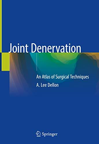 Joint Denervation: An Atlas of Surgical Techniques