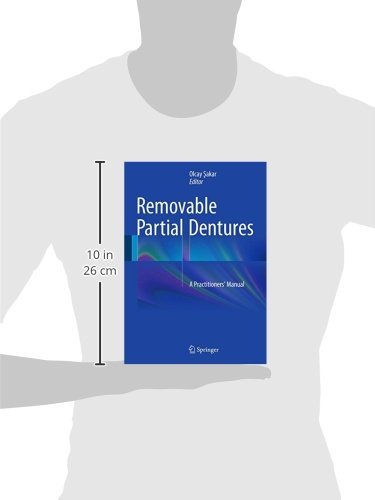 Removable Partial Dentures: A Practitioners'  Manual