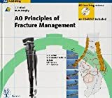 AO Principles of Fracture Management 9783131174413