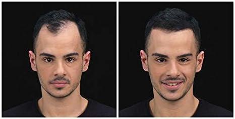 Kmax Concealing Hair Fibers - Fibre capillari - Refill 55 gr ...