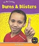 Burns and Blisters, Angela Royston, 1403448248
