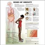 Risks of Obesity Anatomical Chart, Anatomical Chart Company Staff, 1587793806