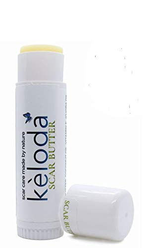 KELODA Keloid Scar Care Butter Stick | Scars and Keloids Removal Balm | For Surgical Scars and Keloids from Piercings, Stretch Marks, Acne | With Anti Scar Cocoa, Shea Butter, Coconut and Jojoba Oils