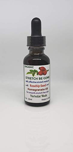STRETCH MARK TREATMENT SERUM | Calendula, Pomegranate Seed and Rosehip Seed Oil | 100% Natural | All Organic Essential Oil Blend | 1 oz.