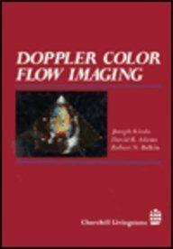 Doppler Color Flow Imaging