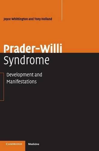 Prader-Willi Syndrome: Development and Manifestations by Joyce Whittington (2004-05-24)