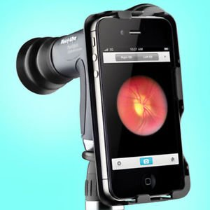 Tathastu Details About Welch Allyn Iexaminer Adopter For Panoptic Ophthalmoscope from Tathastu