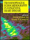 Transesophageal Echocardiography in Congenital Heart Disease, , 0340556536