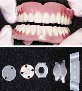 Coble Intra-oral Denture Balancer