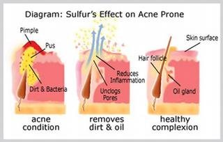 Benzoyl Peroxide or Sulfur: Which acne treatment is right for your sk…