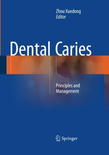 Dental Caries: Principles and Management