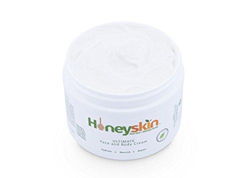 Eczema Repair Cream for Face & Body (8 oz) Anti-Itch, Soothing, Organic Moisturizer, Rosacea, Psoriasis, Rashes, Dry Skin, Wrinkles, Manuka Honey, Aloe Vera, Coconut Oil, MSM (8 oz) by Honeyskin