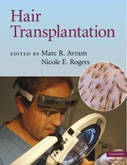 Hair Transplantation (Cambridge Medicine (Hardcover))
