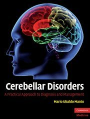 Cerebellar Disorders: A Practical Approach to Diagnosis and Management