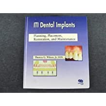 Iti Dental Implants: Planning, Placement, Restoration, and Maintenance
