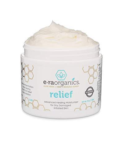 Natural Cream for Eczema