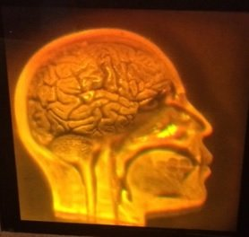 Price comparison product image 3D laser hologram-Brain/Skull- (Anatomically Accurate) hologram on photopolymer film