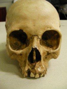 Realistic Resin Jawless Human Skull Replica Prop Terrible Trevor
