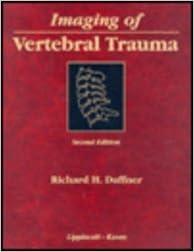 E-kirjat ranskalaisessa ilmaiseksi Imaging of Vertebral Trauma (Clinical Diagnostic Imaging Series) 0397516800 by Richard H. Daffner ePub