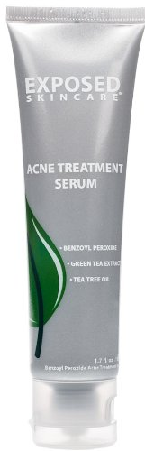 Acne Spot Treatment by Exposed Skin Care, Benzoyl Peroxide 3.5% Mild Cystic...