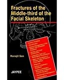 Fractures of the Middle-third of the Facial Skeleton, Sen, 818061123X