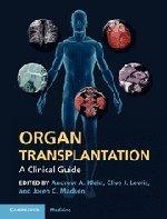 Organ Transplantation: A Clinical Guide