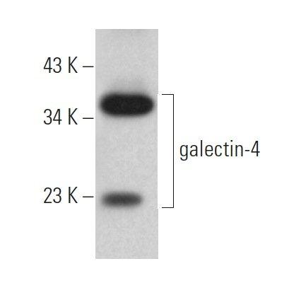 Galectin 4  C 6  P