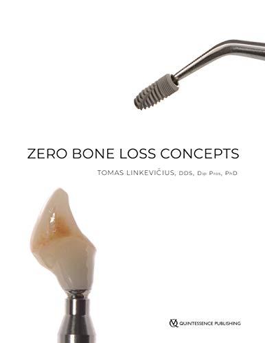 Zero Bone Loss Concepts 1st Edition