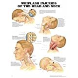 Whiplash Injuries of the Head and Neck, Anatomical Chart Company Staff, 1587793768