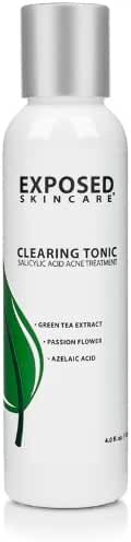 Acne Clearing Tonic Treatment Toner by Exposed Skin Care, Salicylic Acid 1% with Green Tea Extract