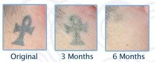 Profade™ 123 - Sistema De Tres Pasos Para Eliminar Tatuajes Que No ...