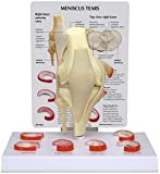 Knee Joint Meniscus Tears Anatomical Model w Key Card NEW