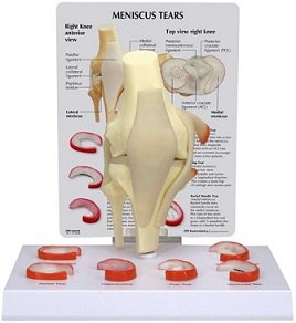 Knee joint meniscus tears anatomical model w key card new human knee joint meniscus tears anatomical model w key card new ccuart Images