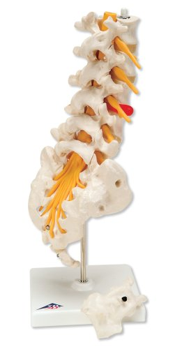 3B Scientific A76/5 Lumbar Spinal Column with Dorso-Lateral Prolapsed Intervertebral Disc, 13.4