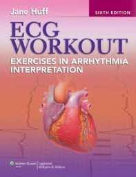 Download ECG Workout: Exercises in Arrhythmia Interpretation (Huff, ECG Workout) 6th (sixth) edition pdf epub