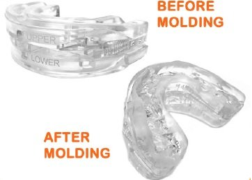 Tranquility Pro 2 Adjustable Bruxism Night Mouthpiece Sleep Mouthguard Mouth Guard Aid by Pro Tech Dental (Image #2)