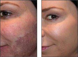 how to help sunburn not peel