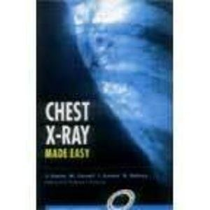 Chest X-Ray Made Easy PDF