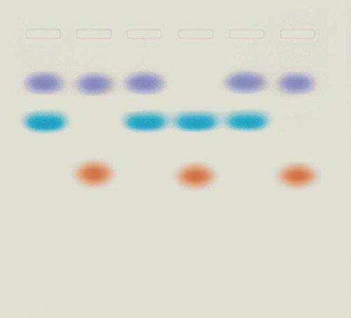 Edvotek S-51 Whose DNA Was Left Behind?