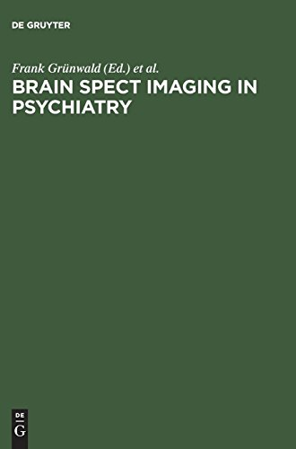 Brain Spect Imaging in Psychiatry