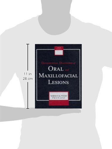Differential Diagnosis of Oral and Maxillofacial Lesions, 5e