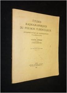 Téléchargement Études radiographiques du poumon tuberculeux, interprétation de radiographies pulmonaires, par Jacques Stéphani pdf, epub ebook