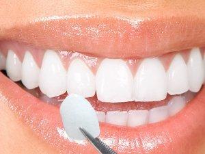 Dental Componeer Thin Whitening Resin Veneer Upper Anterior Teeth 100-Pcs (A3 shade)
