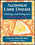 Alcoholic Liver Disease : Pathology and Pathogenesis, , 0340571942